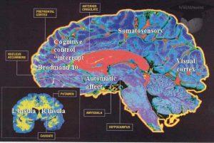 Imagerie cérébrale des zones cognitives et affectives