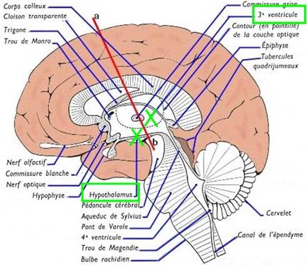 Vue latérale de l'encéphale (coupe médiane